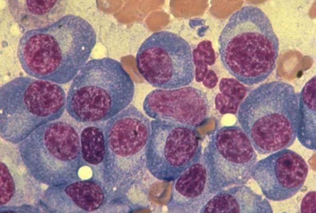 El mieloma múltiple es la segunda neoplasia hematológica más común, con más de 138.000 casos nuevos cada año en el mundo.