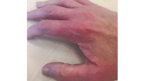 En su forma grave, la DA provoca eczemas en la piel, picor intenso y un gran impacto en quienes la sufren.