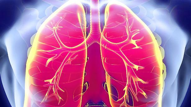 El cáncer de pulmón aumenta paulatinamente.