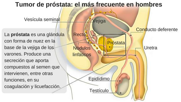 Cancer de prostata | docspoint.ro