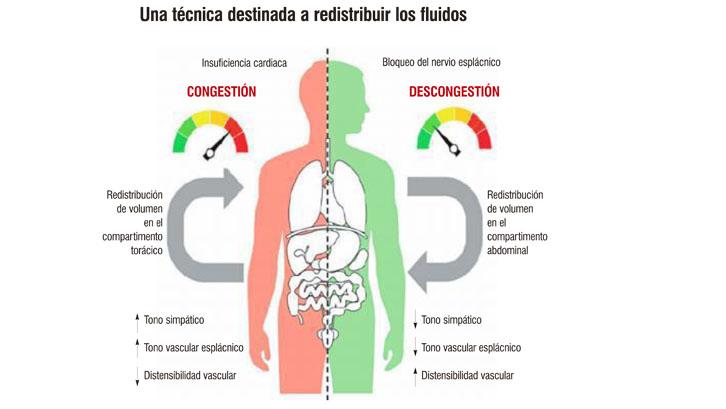 El bloqueo del nervio esplácnico mejora la insuficiencia cardiaca ...