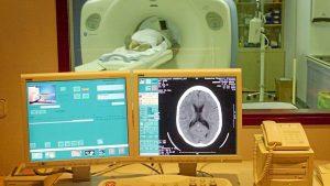 Un paciente es observado en una TC.
