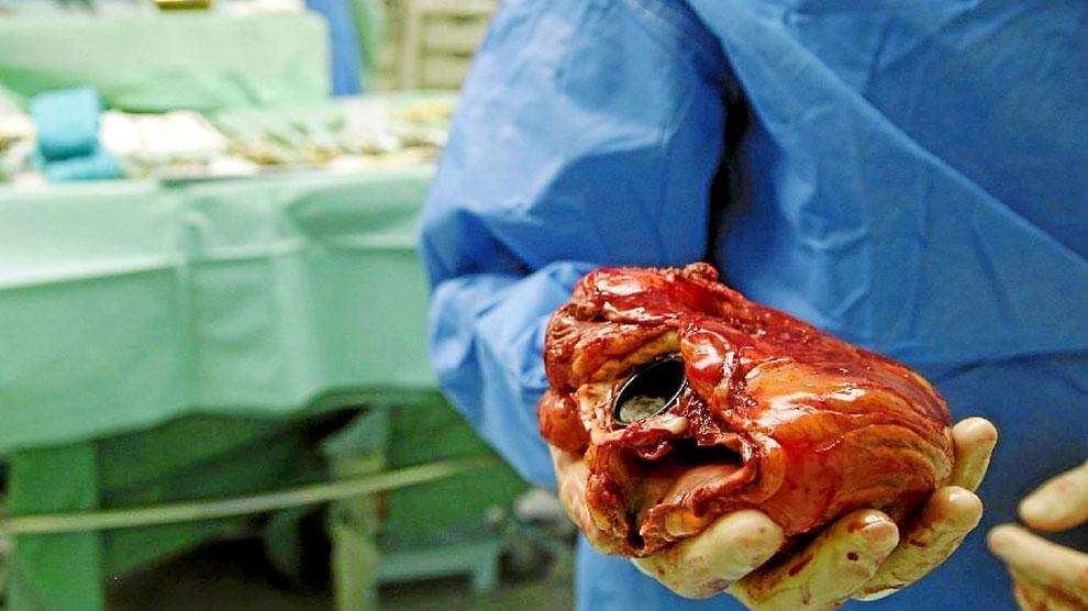 Un cirujano sujeta el corazón de un receptor en un momento de un trasplante cardíaco.
