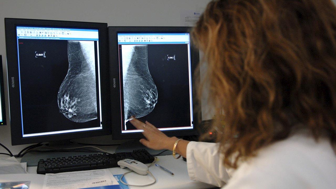 Rectificación de un diagnóstico tras una biopsia de tejido ...