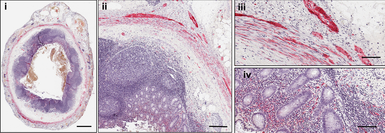 La tinción de tejido de apéndices sanos revela la sinucleína-alfa (en rojo).