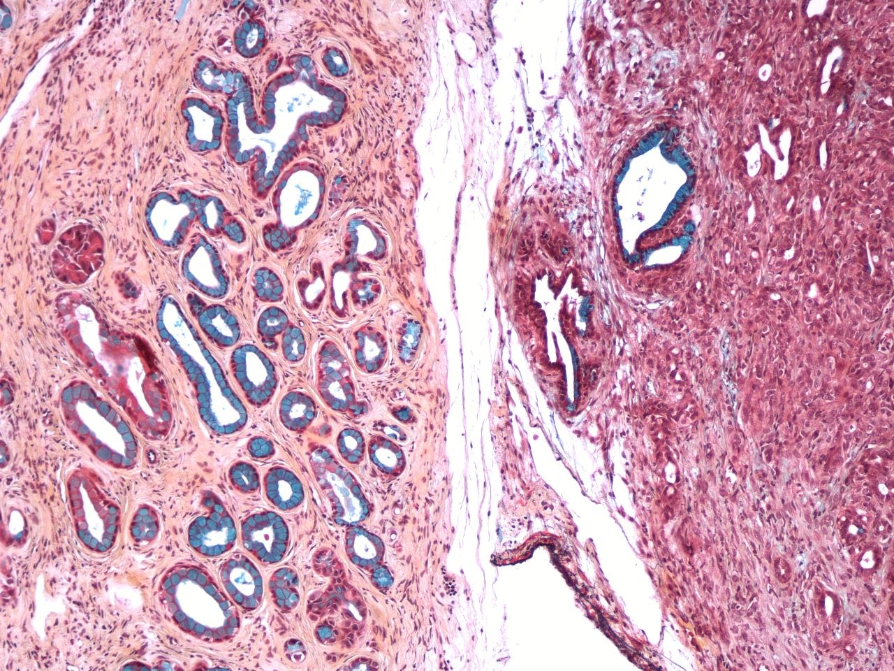 Células de cáncer de páncreas.