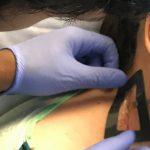 Colocación del sensor en el paciente para comprobar el correcto drenaje de la desviación en hidrocefalia.
