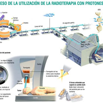 terapia de protones para el cáncer de próstata avanzado