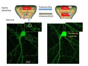 Imagen del efecto descrito en la investigación, donde se ilustra, de forma esquemática y mediante imagen microscópica, la pérdida de dinámica y posterior deterioro de las espinas dendr�ticas (José Mart�nez Hernández / UPV/EHU).