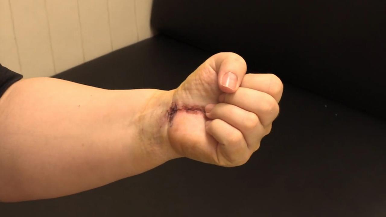 Máxima flexión de los dedos de la mano dominante de Camelia.