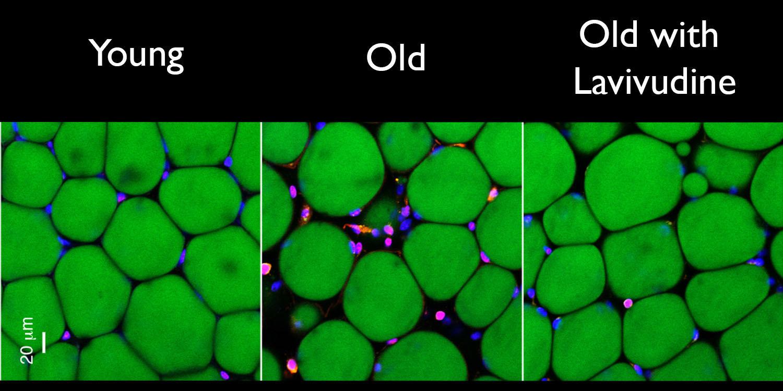 Dos semanas de tratamiento con lamivudina redujeron los signos de inflamación crónica: en tejido adiposo de ratón (verde), glóbulos blancos tintados rosa.