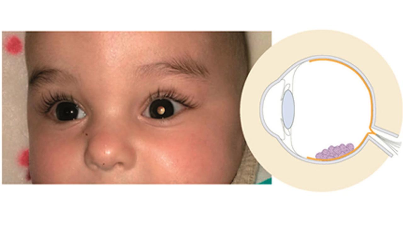 Ensayo piloto en retinoblastoma pediátrico.