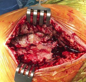 Material purulento en infección protésica de cadera.