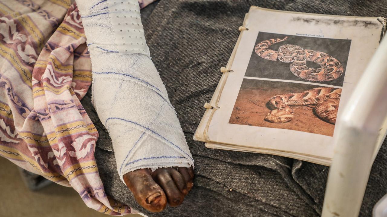 Mordedura de serpiente atendida en el Hospital de Agok, en Sudán del Sur, que gestiona MSF.