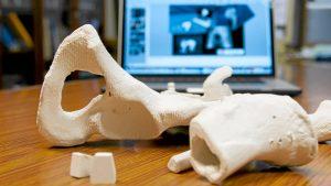 Las cirugías ortopédicas, pioneras en 3D.