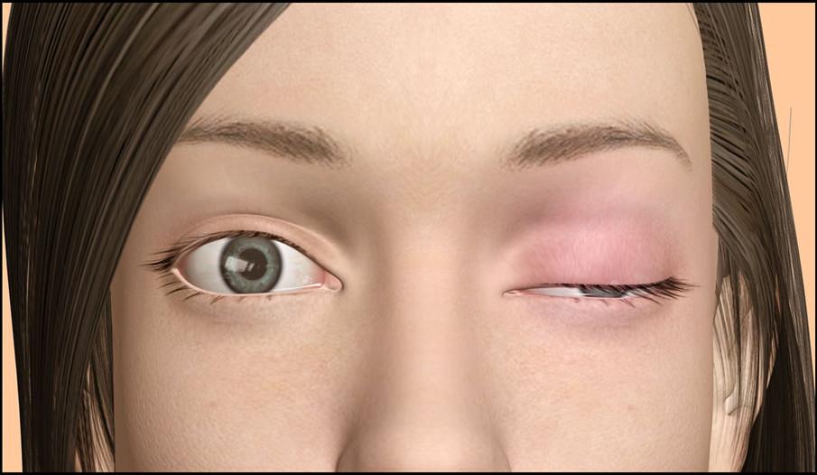 La miastenia gravis es una enfermedad neuromuscular autoinmune.