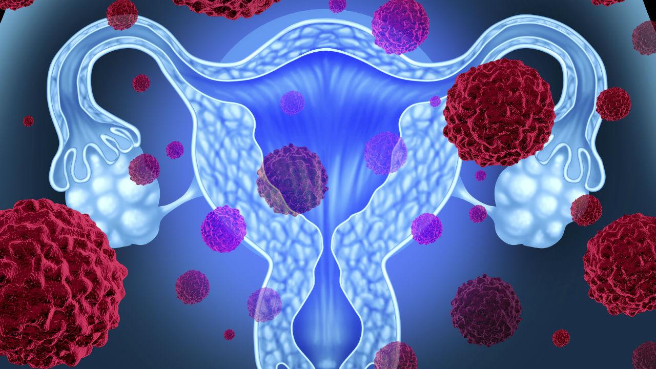 Recreación de unos ovarios