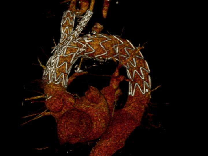endoprótesis de doble rama en el arco aórtico.