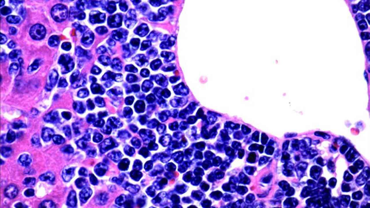 Células T en leucemia linfoblástica aguda.