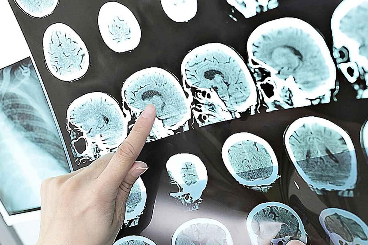 Imágenes por RM del cerebro