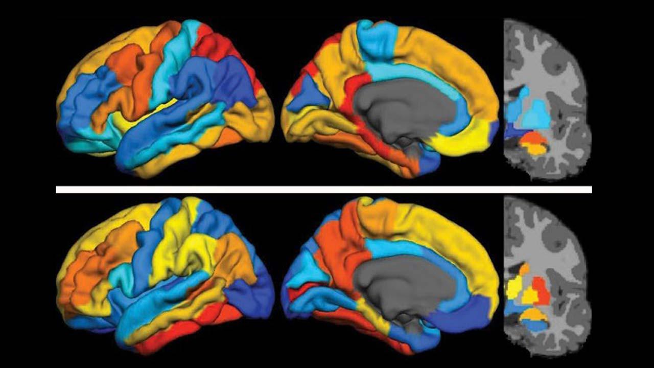 Imágenes de PET que muestran la presencia de la proteína tau y del péptido amiloide beta