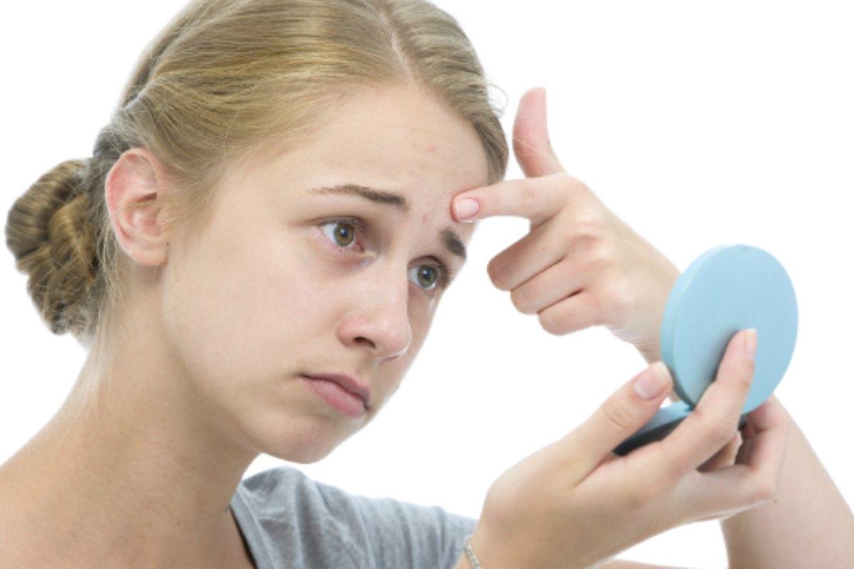 El acné es una afección de la piel que suele darse durante la pubertad.