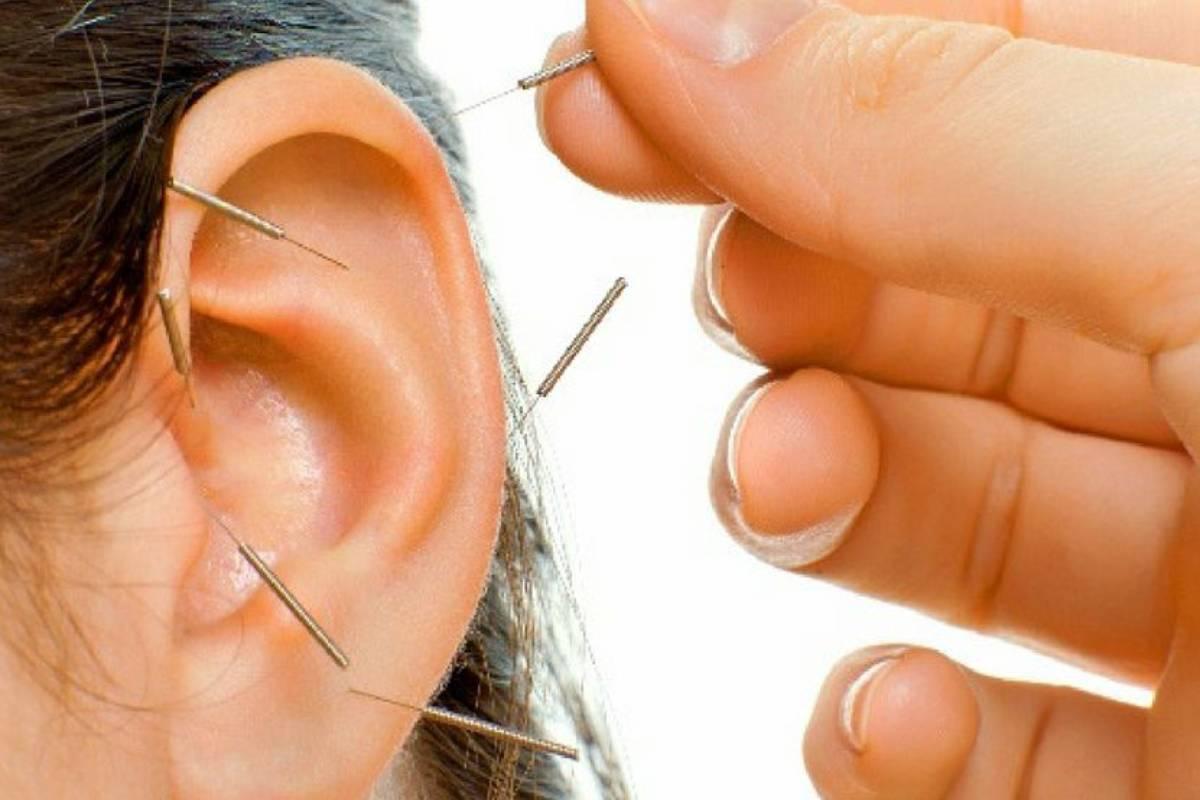 Tratamiento de acupuntura en la oreja