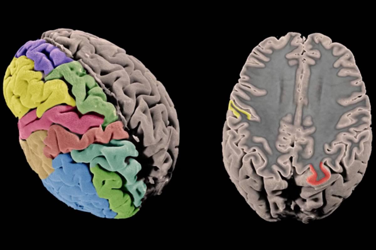 Imagen de superficie cortical y pensamiento