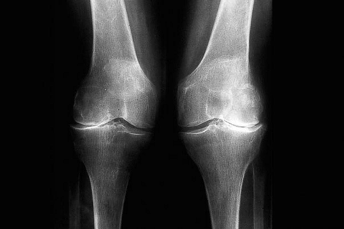 Dos rodillas con artrosis