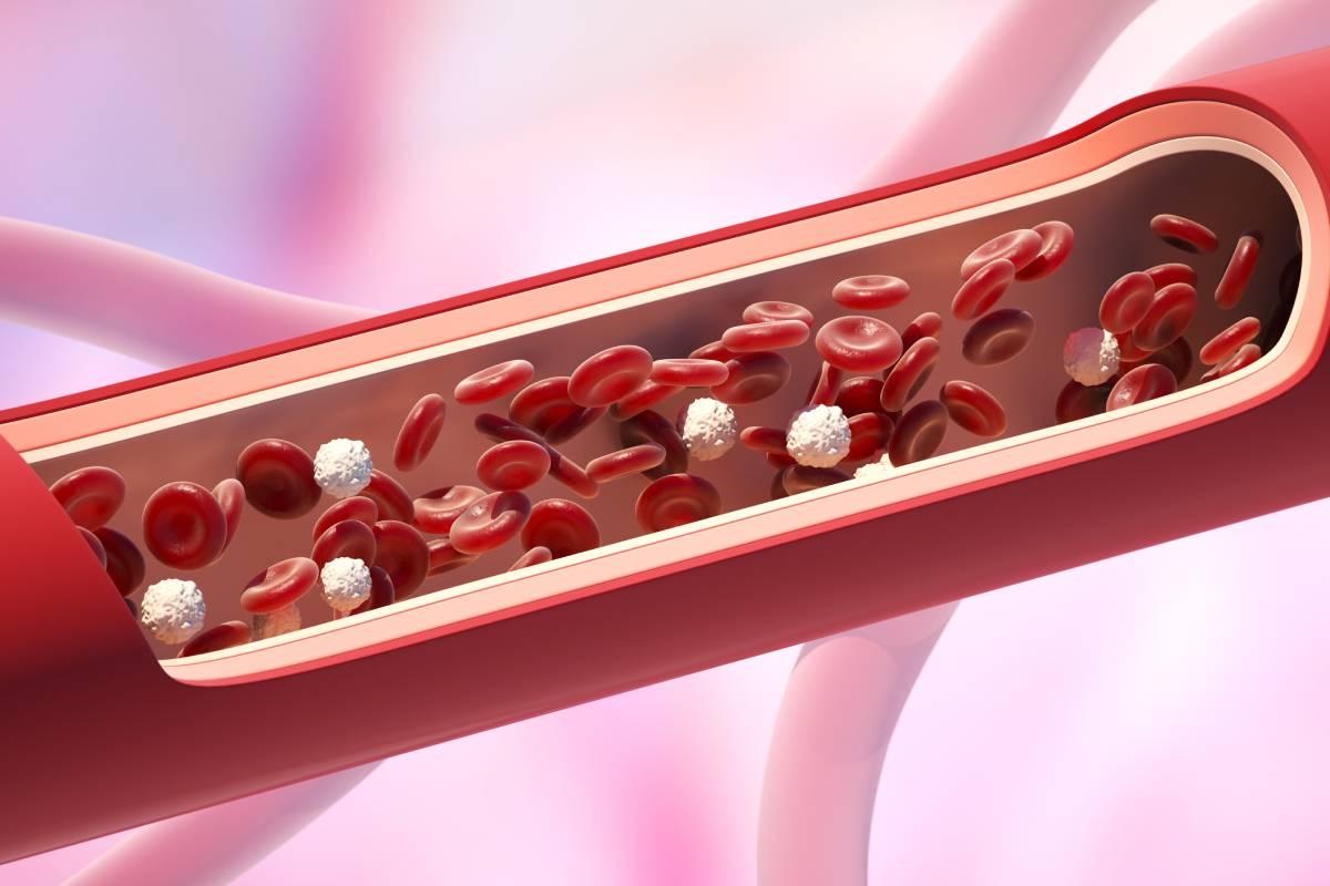 Una de las proteínas presentes en la placa de ateroma en sus estados más iniciales podría usarse como biomarcador