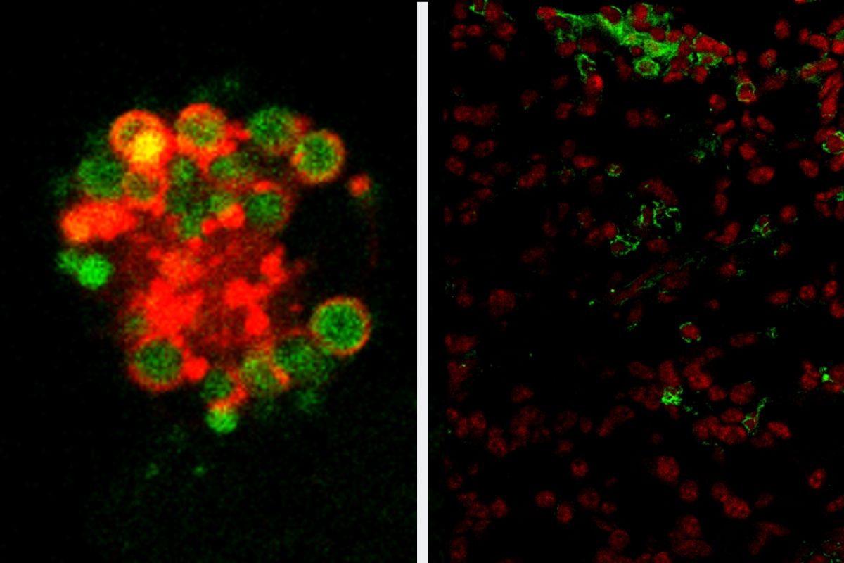 Figura 1: Microscopía confocal mostrando un macrófago peritoneal de un ratón deficiente en RXR, donde se observa un alto contenido de lípidos (verde) dentro de vesículas ácidas (rojo). Figura 2:  Inmunofluorescencia que muestra una sección de un tumor de ovario, donde se observa la presencia de macrófagos peritoneales que han infiltrado el tumor (células con un núcleo rojo rodeado de citoplasma verde)