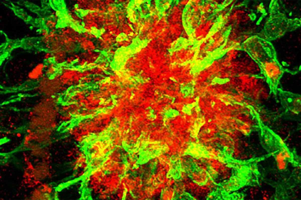 La proteína SFRP1 (rojo), implicada en el alzhéimer, rodeada de células gliales (verde)