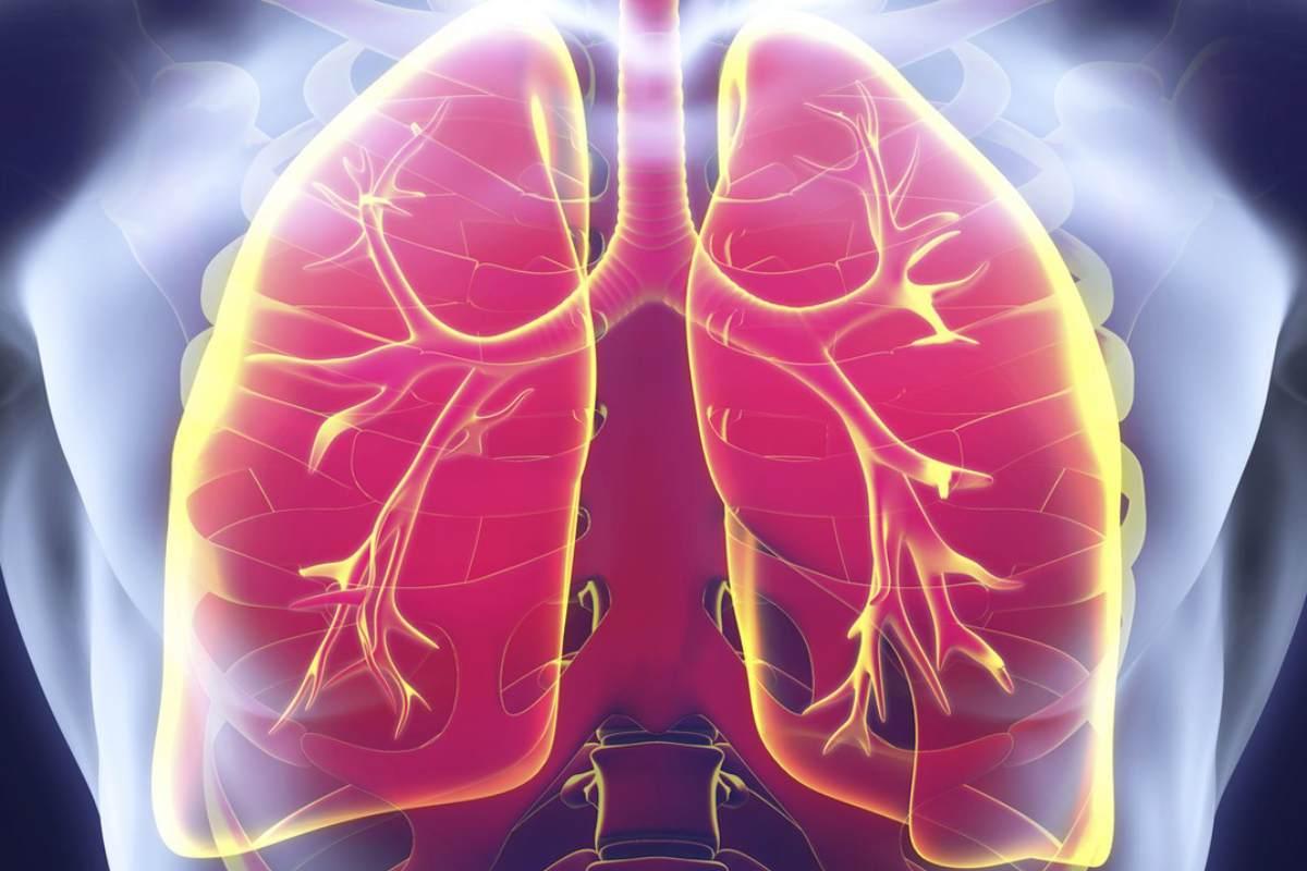 La enfermedad pulmonar intersticial representa casi el 35% de la mortalidad relacionada con la esclerosis sistémica.