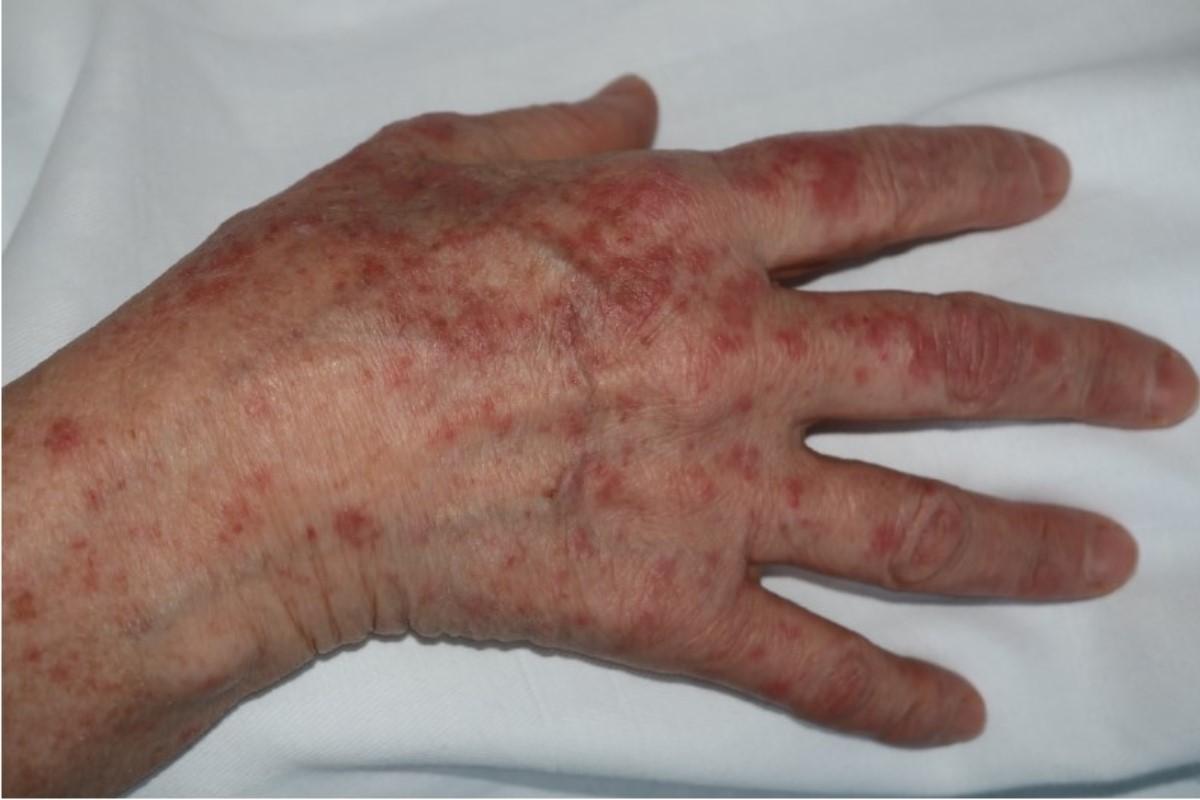 Mano de un paciente con eritema multiforme
