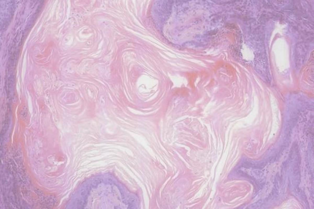 Imagen histológica de un cáncer de vejiga.