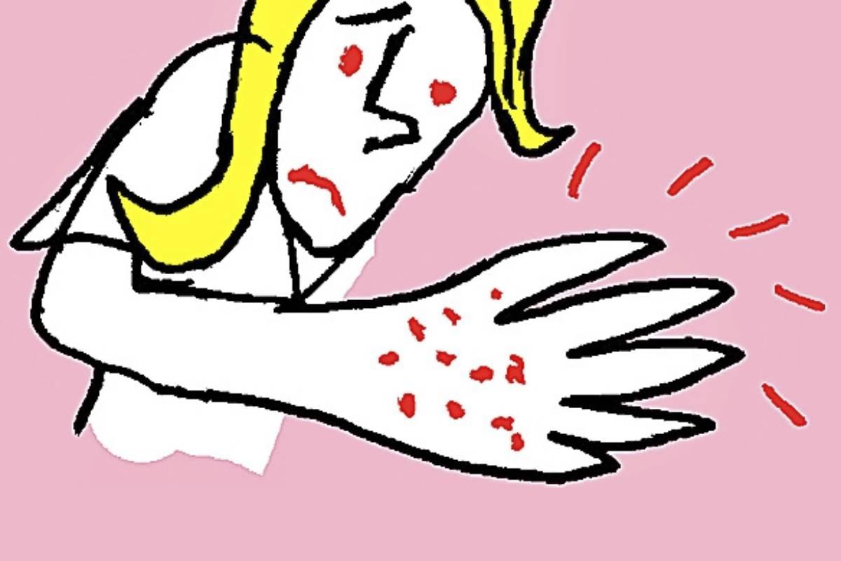Eccema en la piel