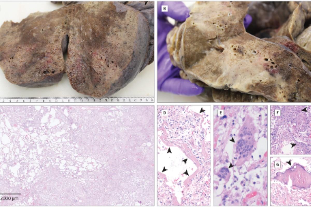 Imágenes macroscópicas (A y B) e histológicas (C) de daño alveolar difuso organizador y terminal con membranas hialinas (D, puntas de flecha, × 100), células gigantes multinucleadas (E, puntas de flecha, × 400) y metaplasia escamosa / ósea (F y G, puntas de flecha, × 200) en un paciente con un curso fatal de Covid-19.