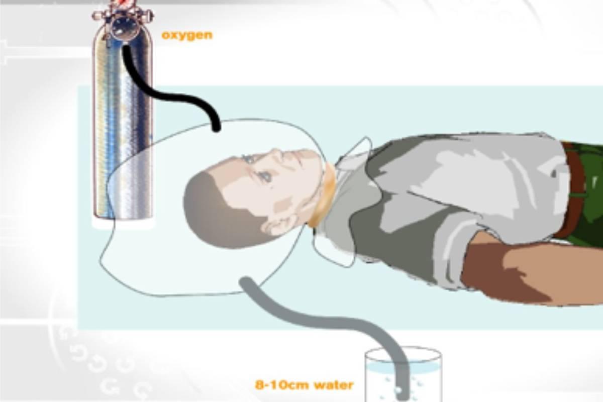 Primera CPAP rudimentaria
