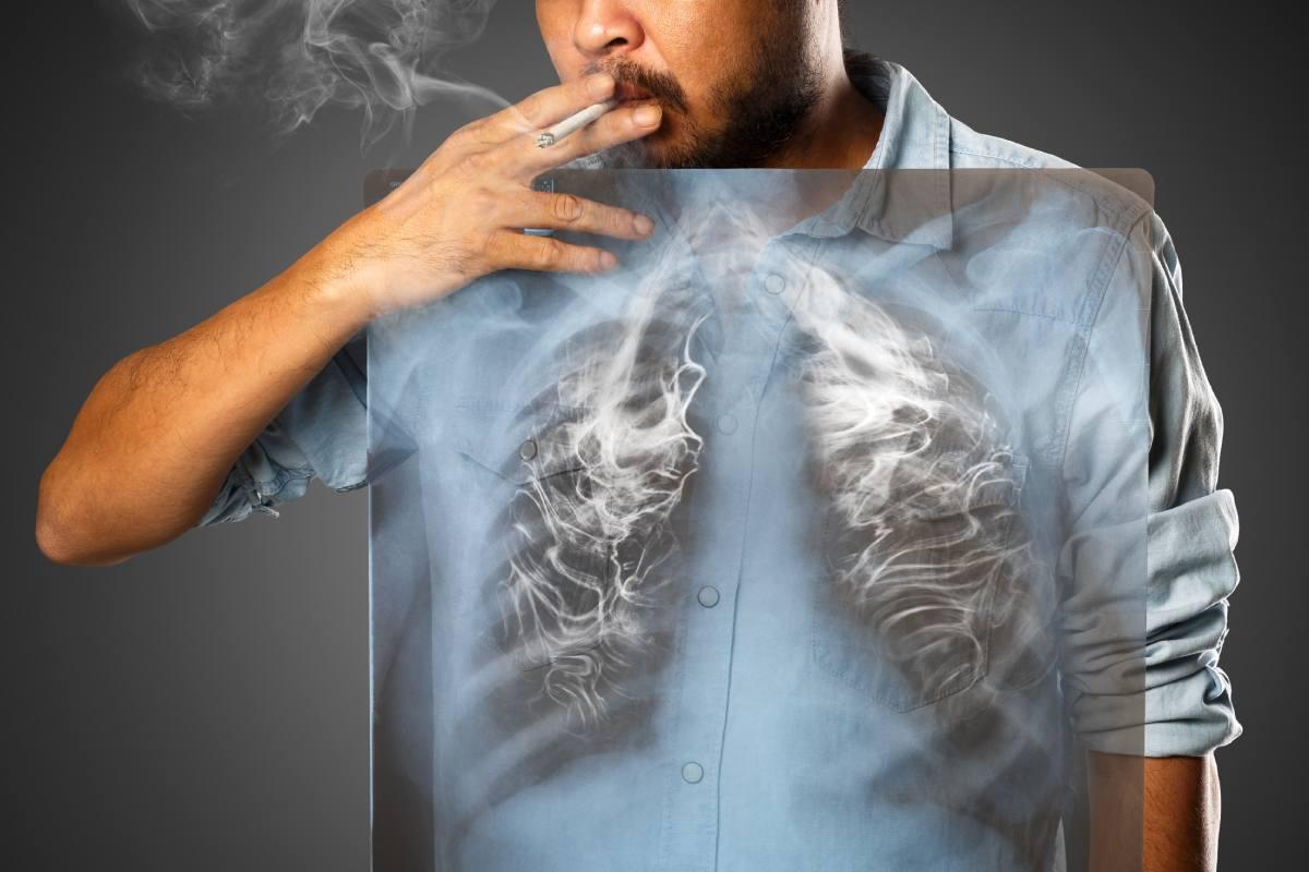 El 23,95% de la población española es fumadora habitual