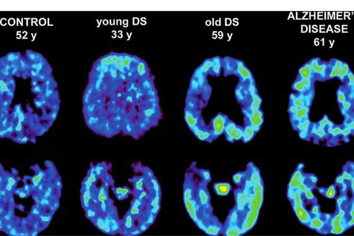 Imagenes de PET: individuos control, con Alzheimer y con síndrome de Down.