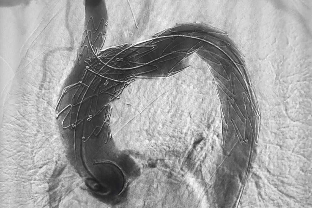 La endoprótesis bimodular ya implantada.