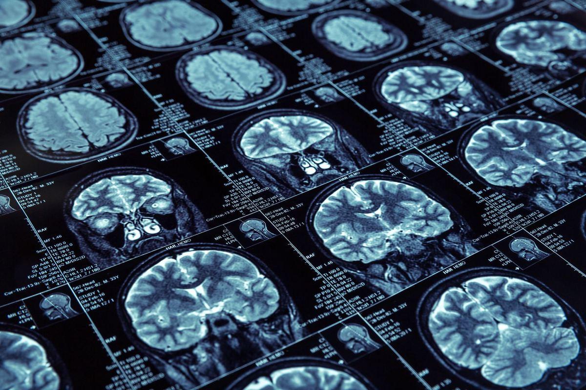 Estudios de imagen que muestran enfermedad de Alzheimer.