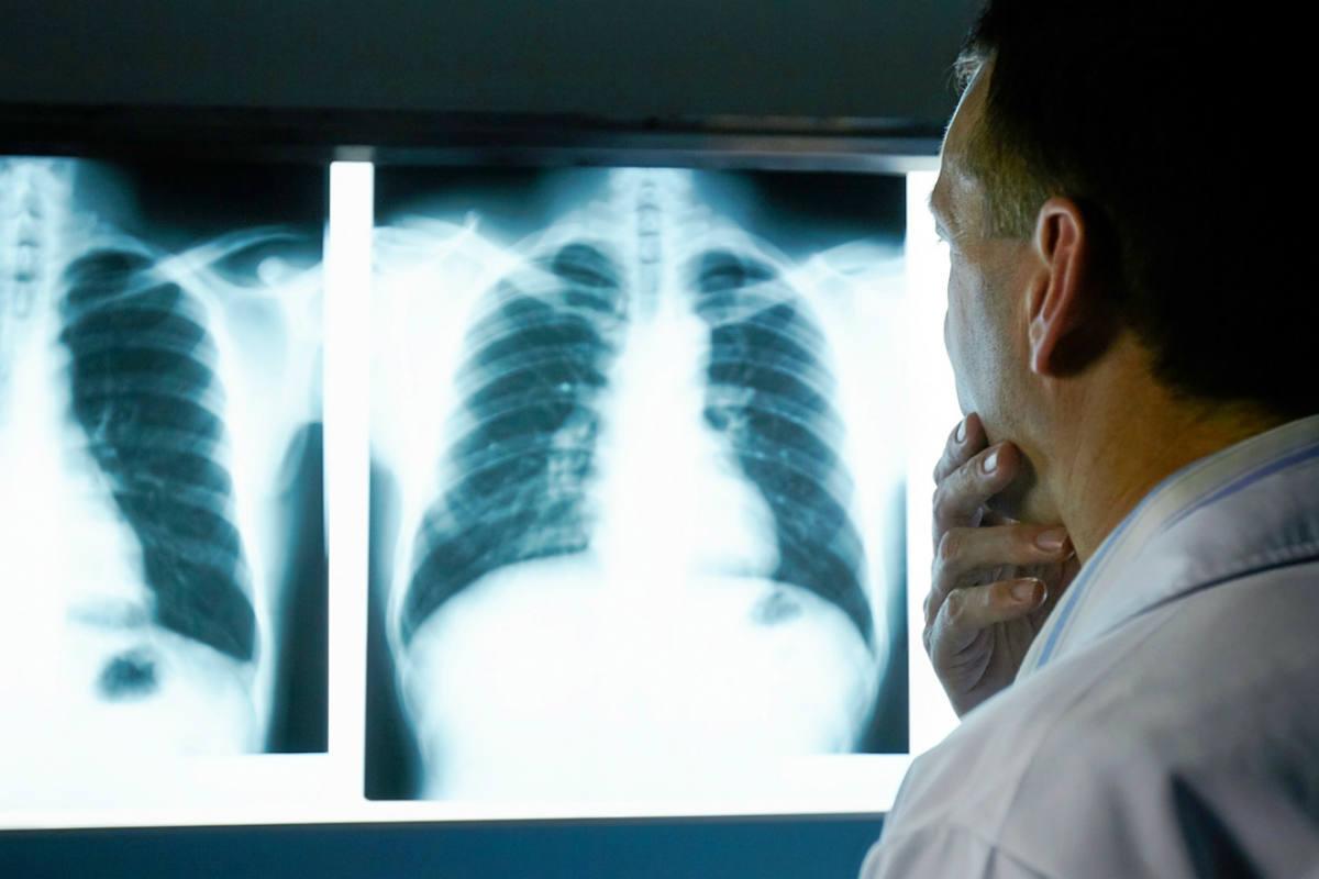 Las complicaciones asociadas a inmunoterápicos fueron mas graves en pacientes con cáncer de pulmón.