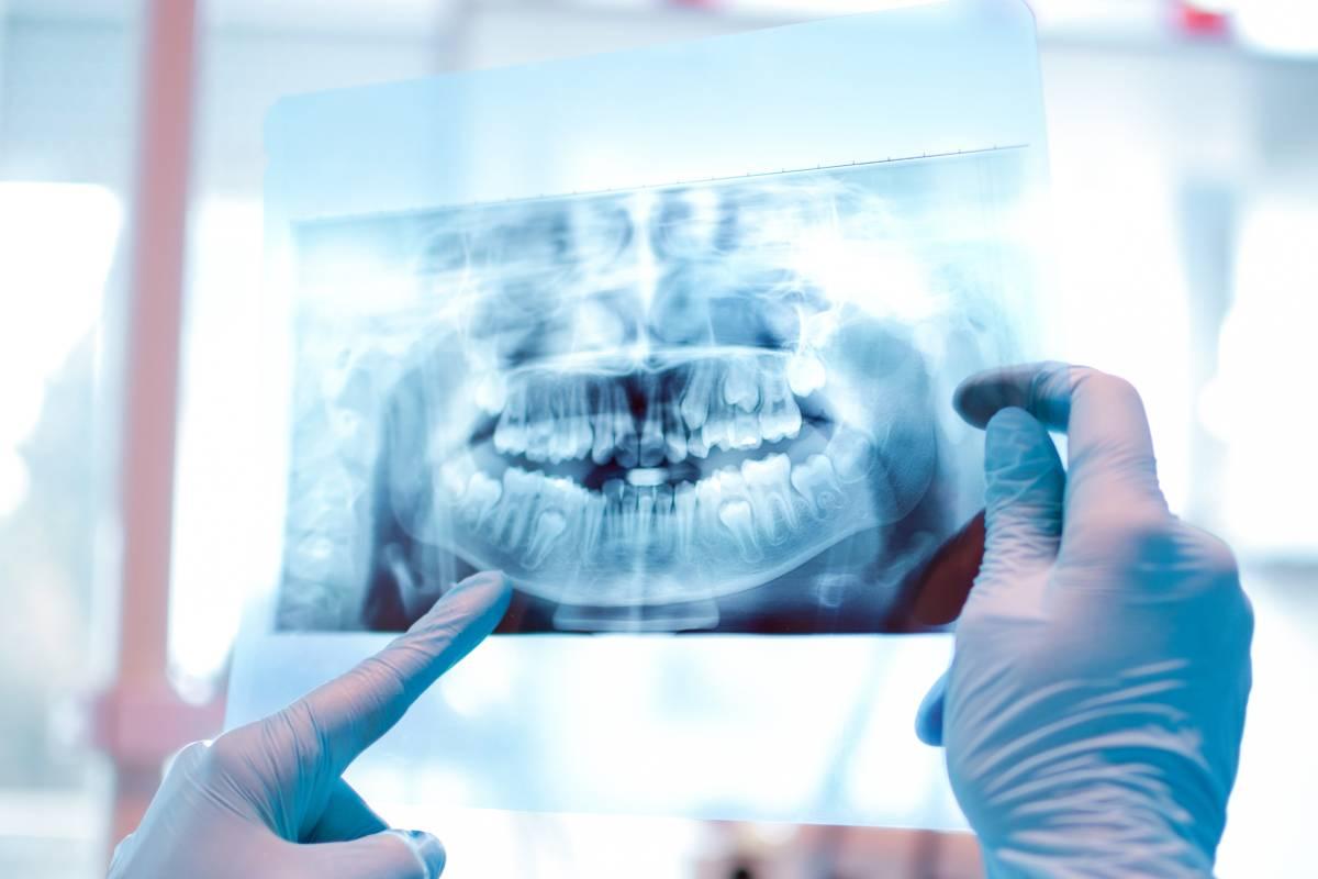 Radiografía panorámica de las mandíbulas