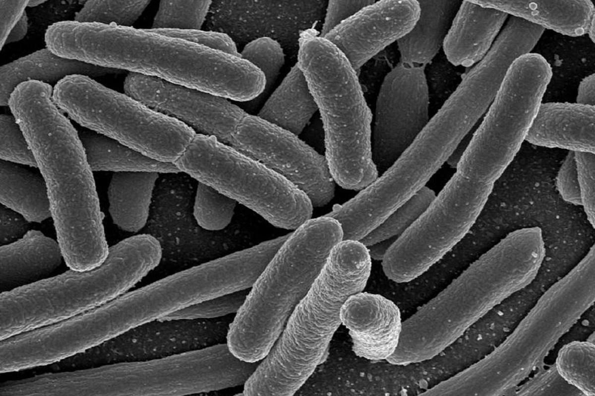 Colonia de Escherichia coli