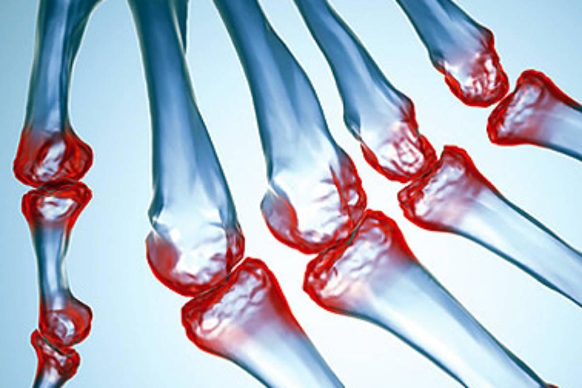 Filgotinib se ha autorizado en artritis reumatoide activa de moderada a grave.