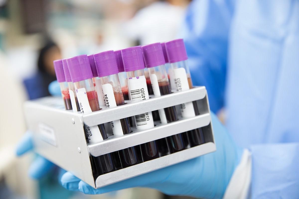 Muestras de sangre en tubos de ensayo.