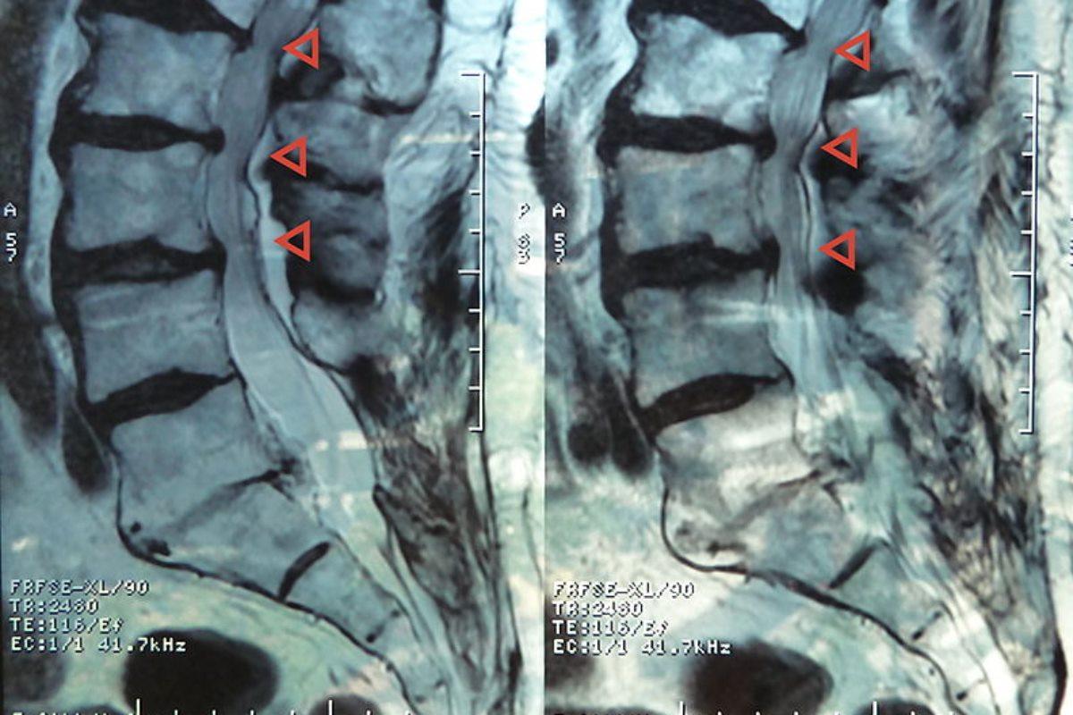 estenosis del canal lumbar
