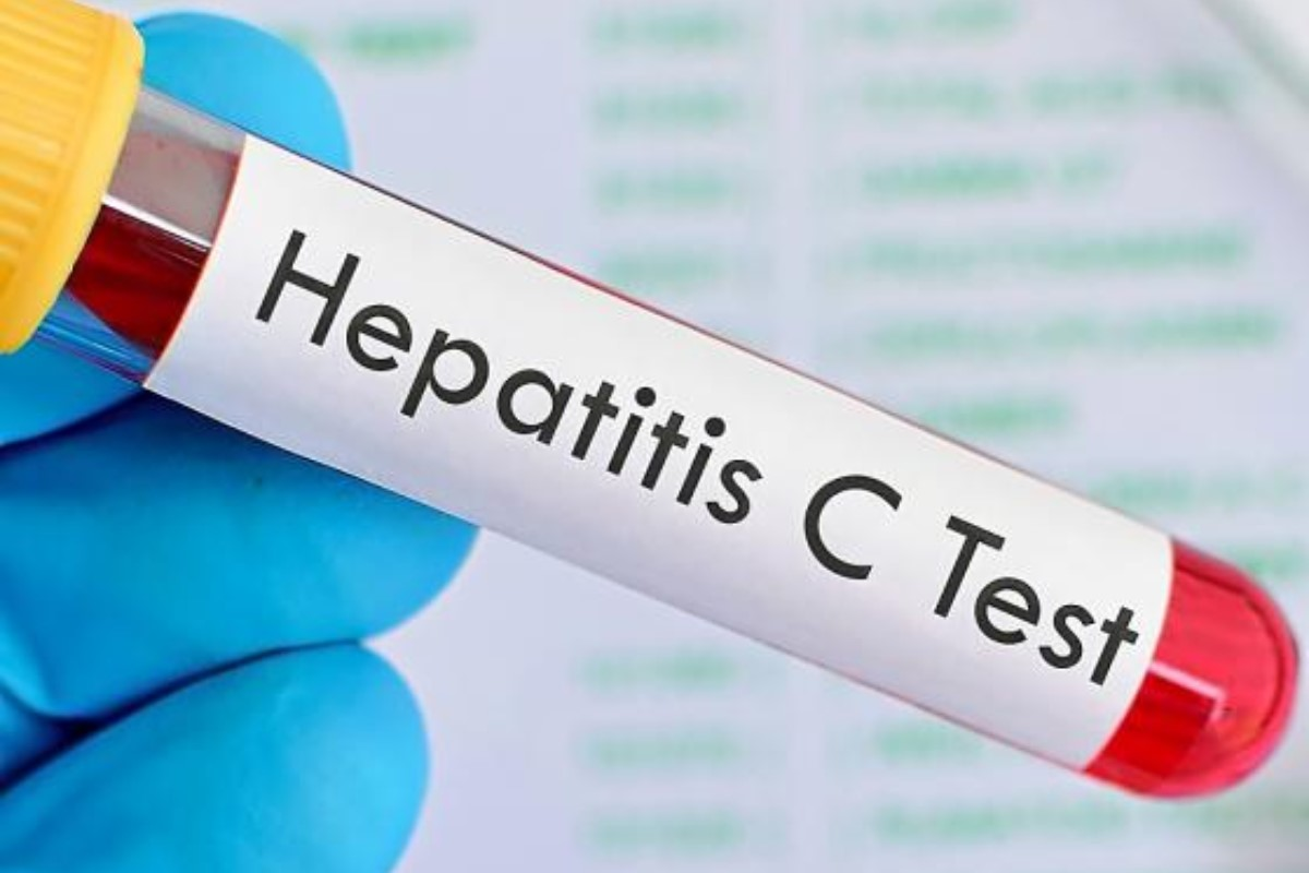 Test de hepatitis C.