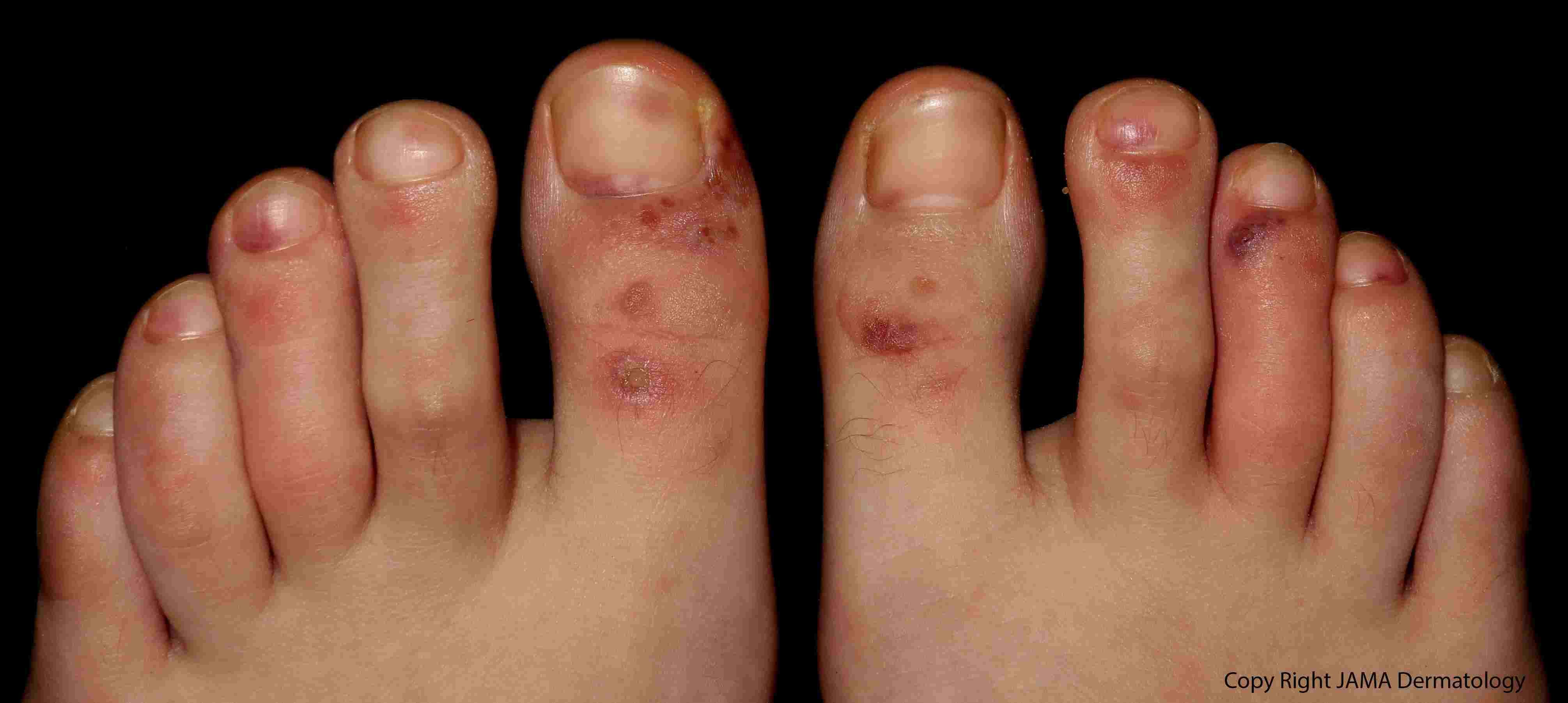Maculopápula purpúrica en los dedos de los pies.
